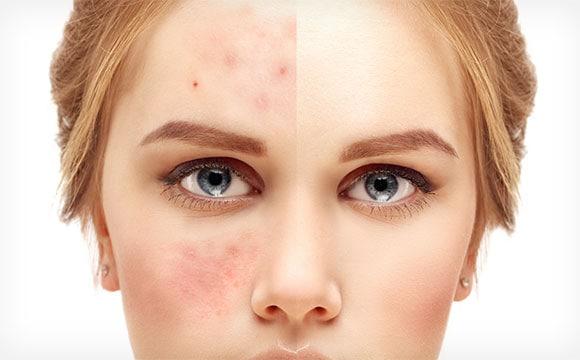Fleke na koži i kako se izboriti sa njima Fleke na koži se pojavljuju zbog prekomerne proizvodnje melanina u pojedinim delovima kože. One se manifestuje u obliku plitkih, tamnih mrlja na koži, svetlosmeđe do crne boje, različitih veličina i oblika. Postoji mnogo oblika pigmentacije, a najčešći su: –Staračke pege, uzrokovane su izlaganjem suncu, stoga se uglavnom javljaju na delovima tela koji su mu najčešće izloženi, poput lica, dlanova i ruku. To su uglavnom mali, tamni […]